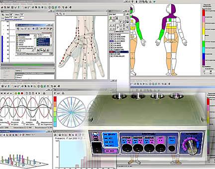Mapeamento de alterações frequenciais e de frequências intrusas, para definição de suplementação - nível último andar